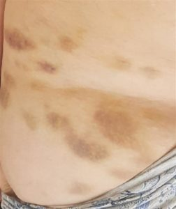 Bruises left by demonic attack